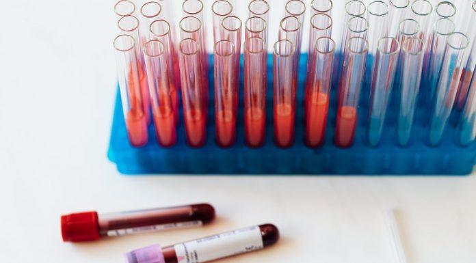 Test-sierologici-Covid